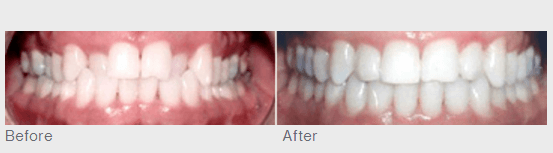Invisalign Clear Braces Dentist