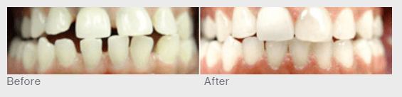 before and after invisalign example