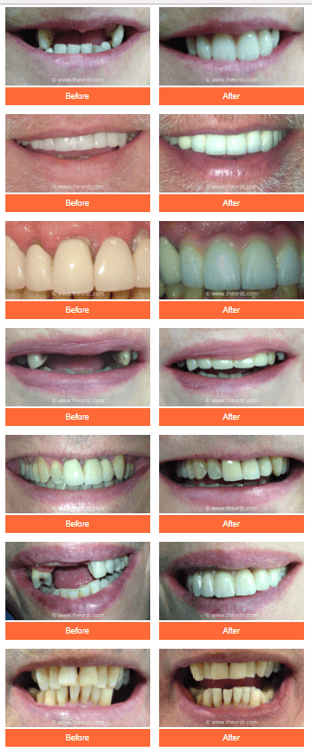 dental implants before and after London