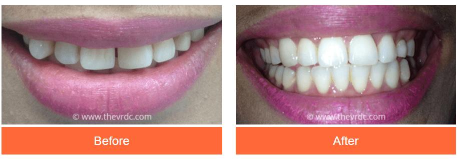 Invisalign® Clear Braces | Victoria Road Dental Clinic