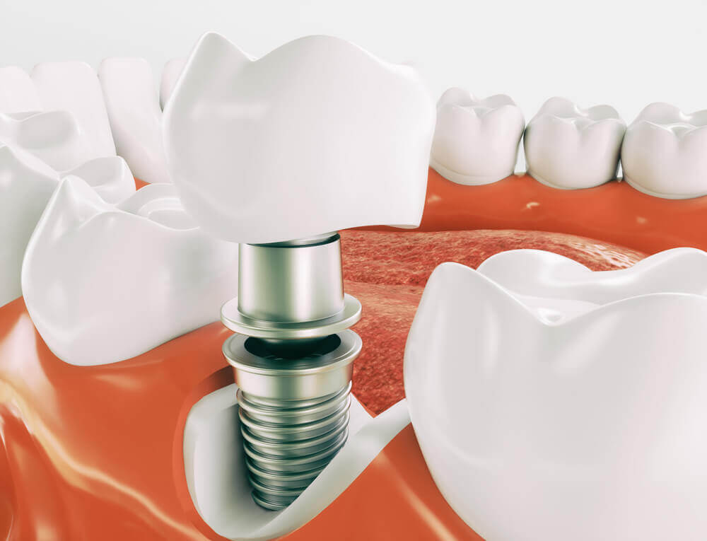 Dental Implants North London