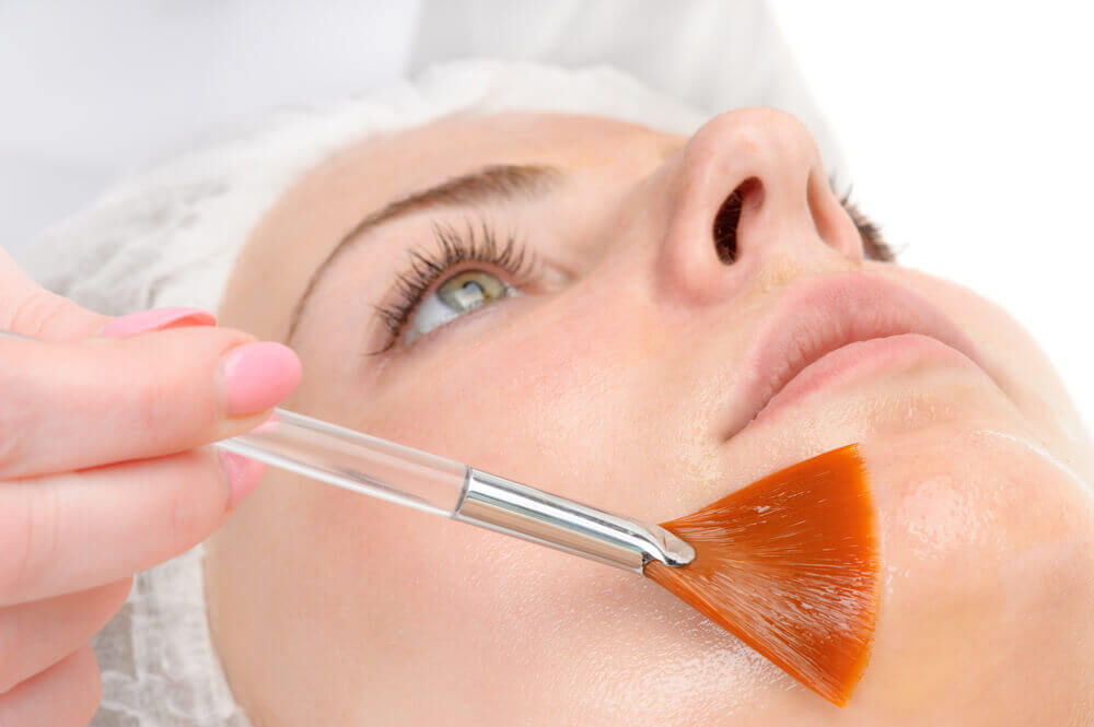 skin care peels Ruislip