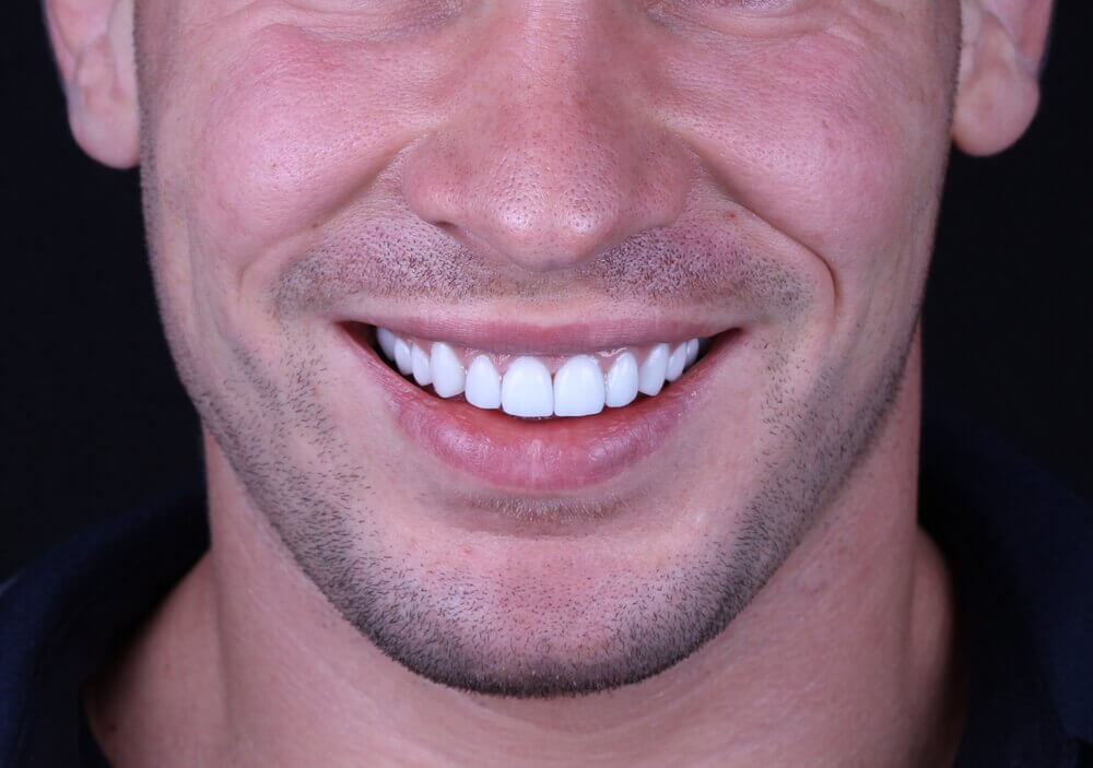 Porcelain Veneers North London