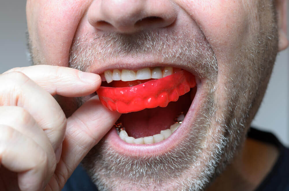 custom mouthguards North London