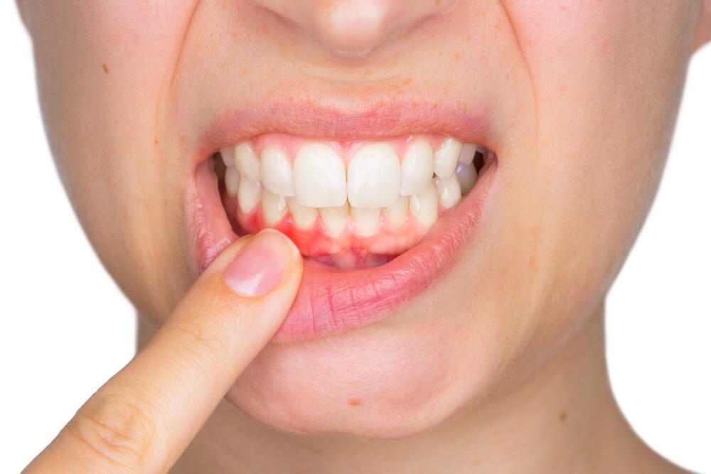 gum disease Ruislip