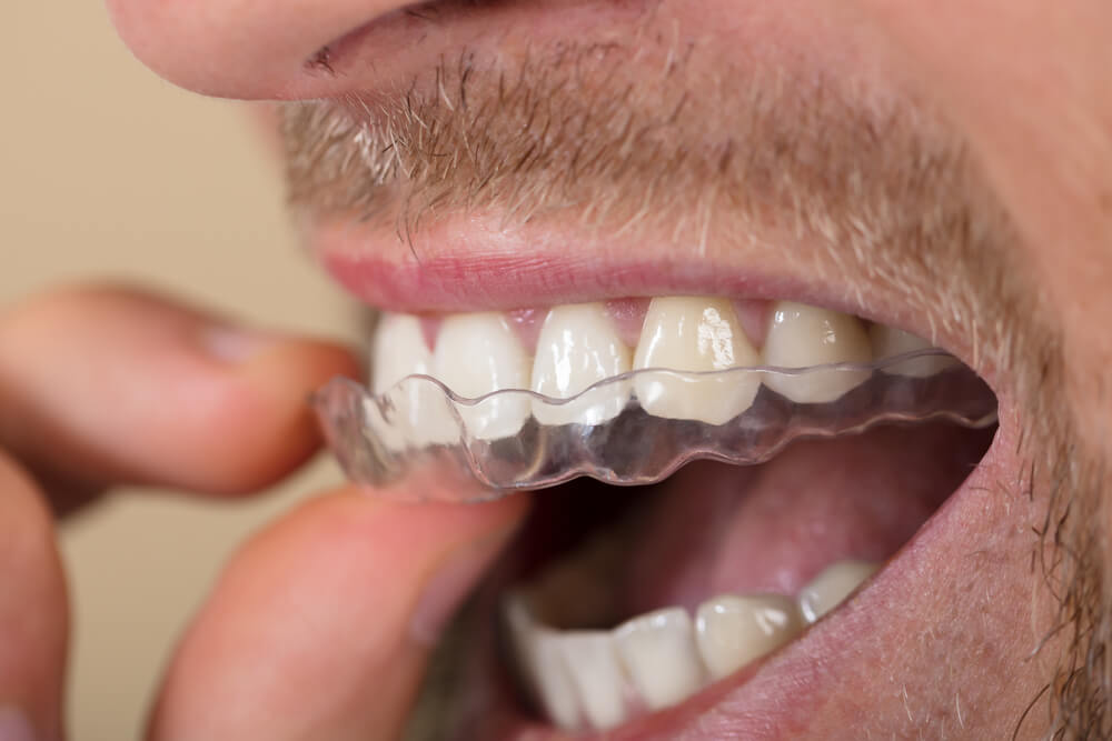 dental clinic in gurgaon Do You Clench Your Teeth? Do You Clench Your Teeth? shutterstock 694710046