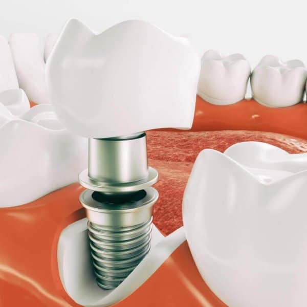dental implants ruislip