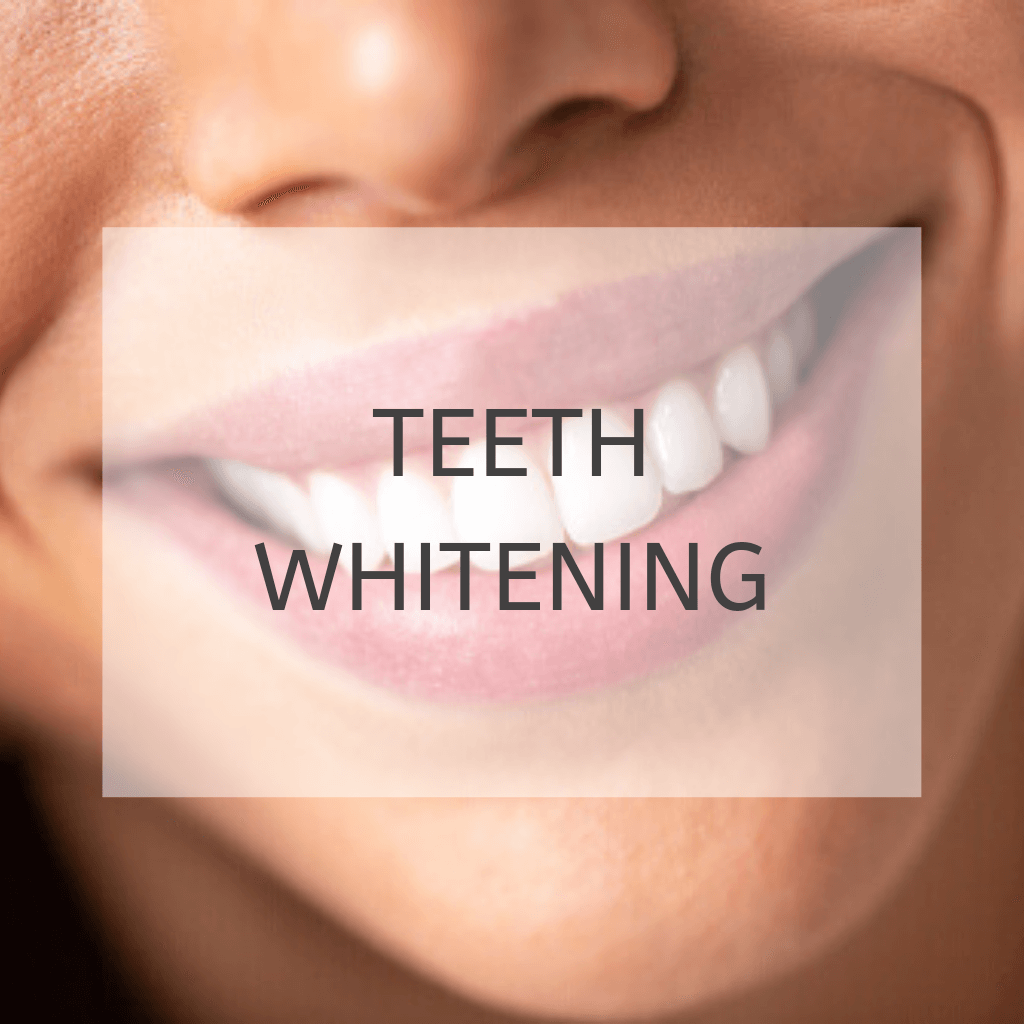 "closeup of smiling woman with white teeth with text ""teeth whitening"""